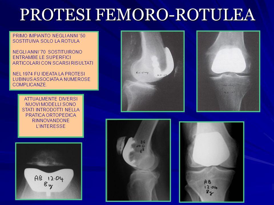 PROTESI FEMORO-ROTULEA