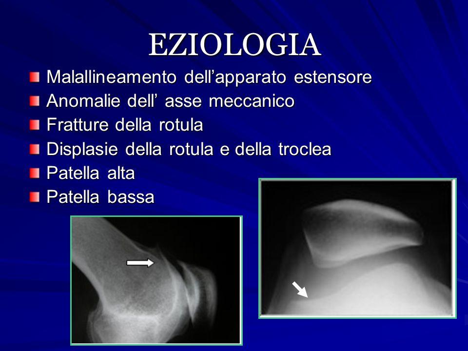 EZIOLOGIA Malallineamento dell'apparato estensore