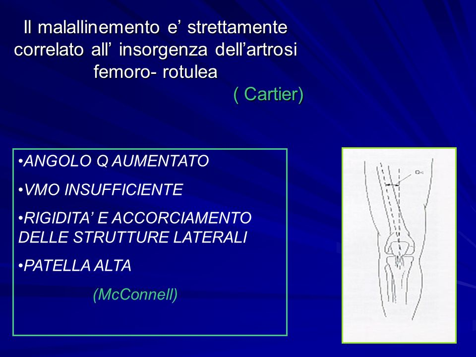 Il malallinemento e' strettamente correlato all' insorgenza dell'artrosi femoro- rotulea ( Cartier)