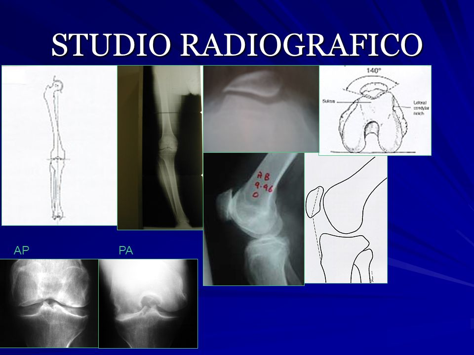 STUDIO RADIOGRAFICO AP PA