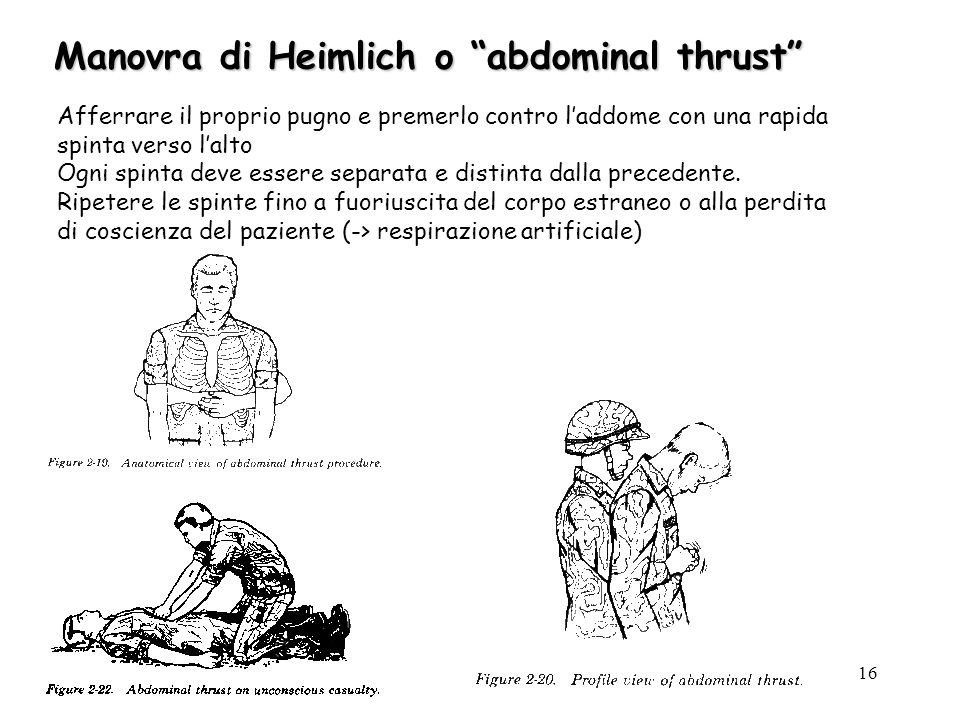 Manovra di Heimlich o abdominal thrust