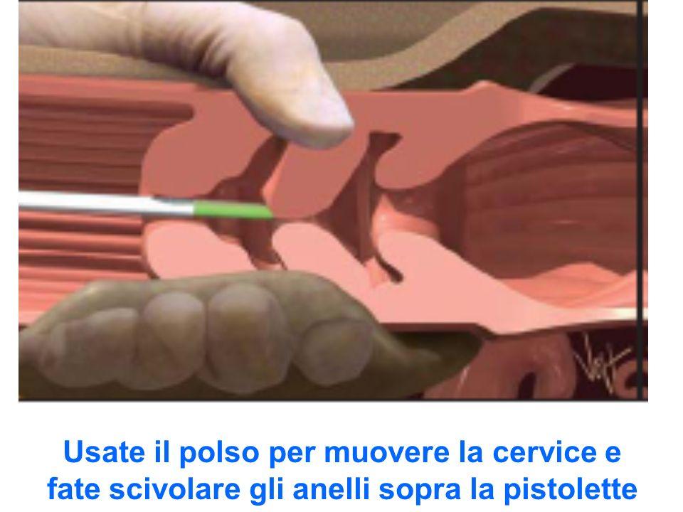 Usate il polso per muovere la cervice e fate scivolare gli anelli sopra la pistolette