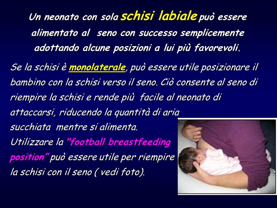 Un neonato con sola schisi labiale può essere