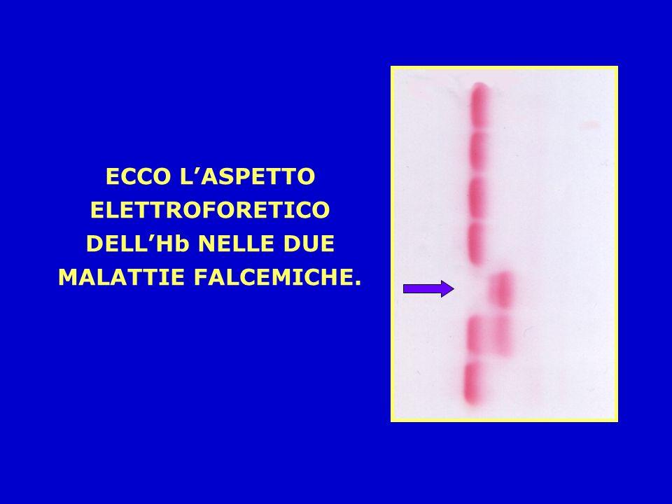 ECCO L'ASPETTO ELETTROFORETICO DELL'Hb NELLE DUE MALATTIE FALCEMICHE.