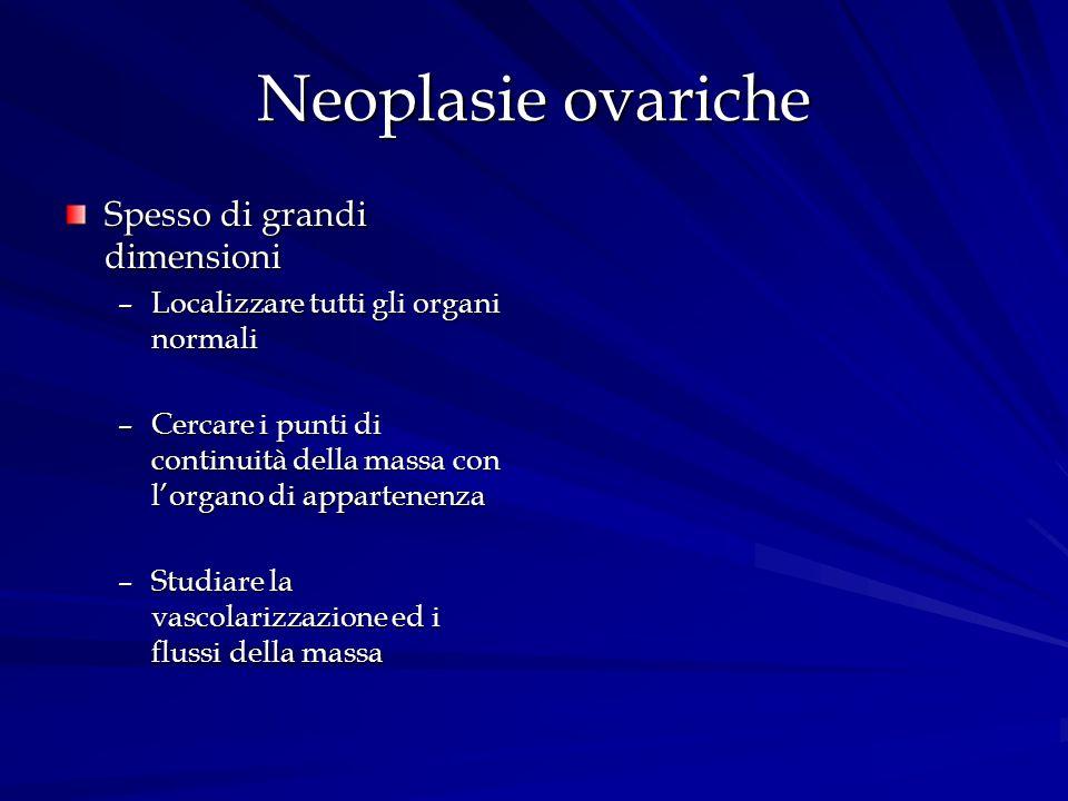 Neoplasie ovariche Spesso di grandi dimensioni