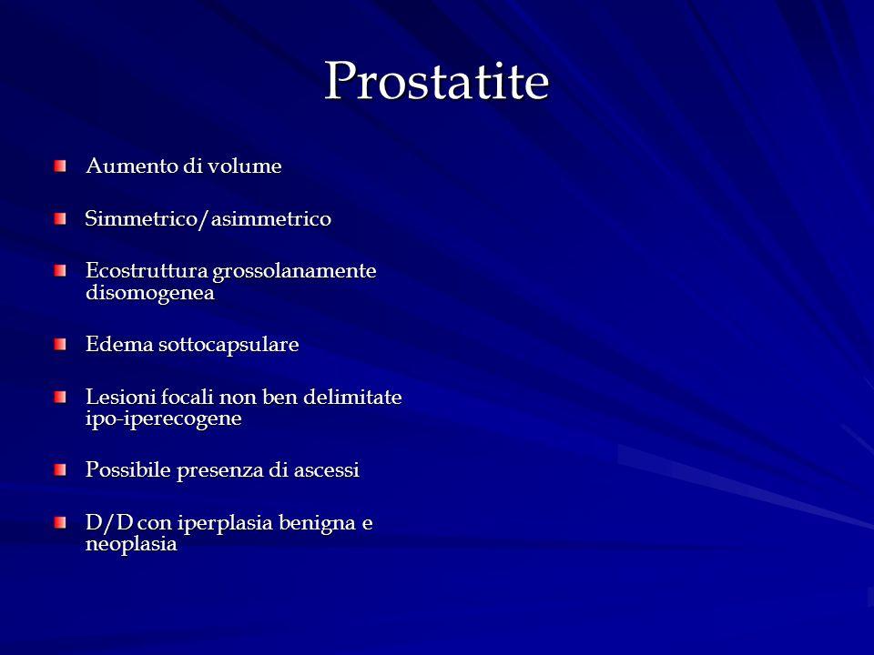 Prostatite Aumento di volume Simmetrico/asimmetrico