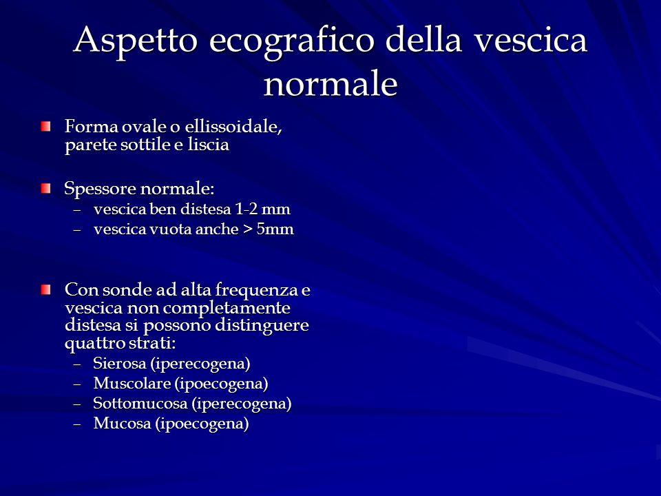 Aspetto ecografico della vescica normale