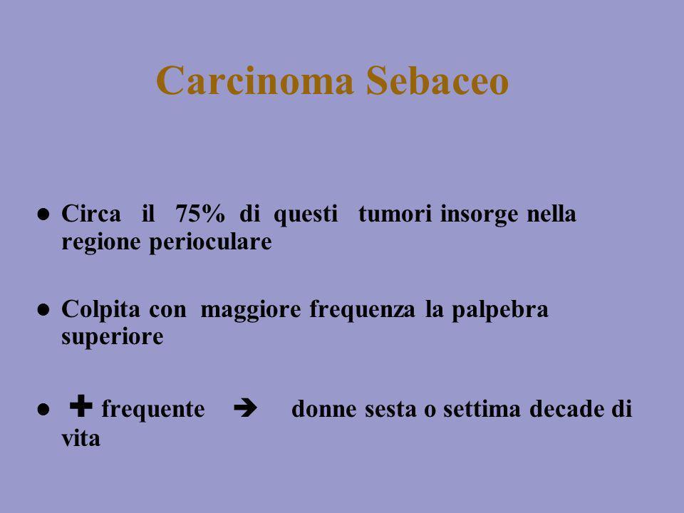 Carcinoma Sebaceo Circa il 75% di questi tumori insorge nella regione perioculare. Colpita con maggiore frequenza la palpebra superiore.