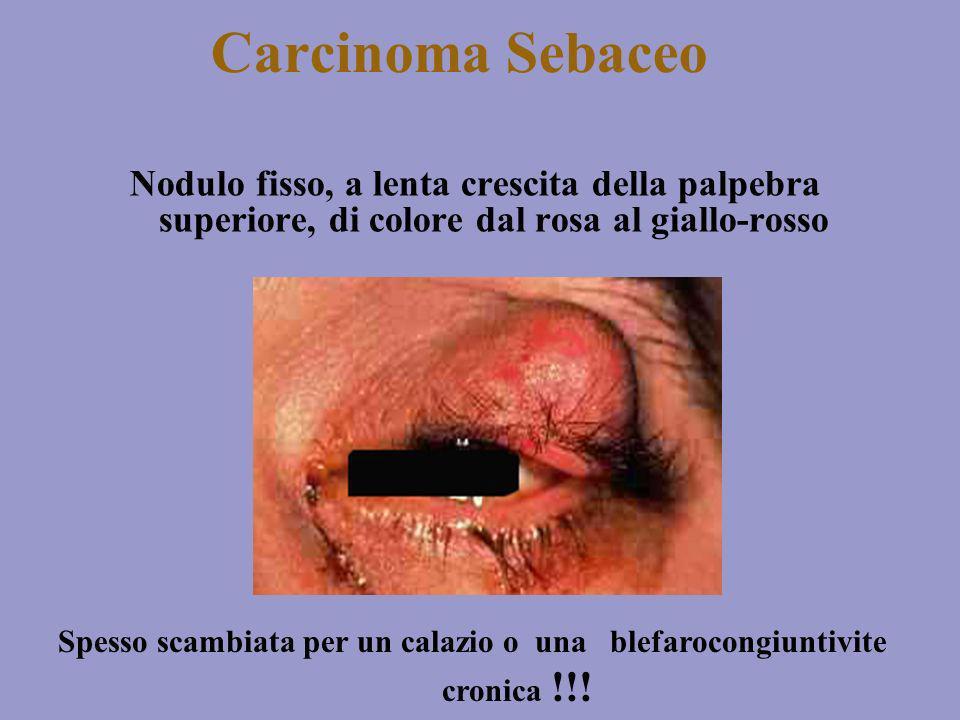 Carcinoma Sebaceo Nodulo fisso, a lenta crescita della palpebra superiore, di colore dal rosa al giallo-rosso.