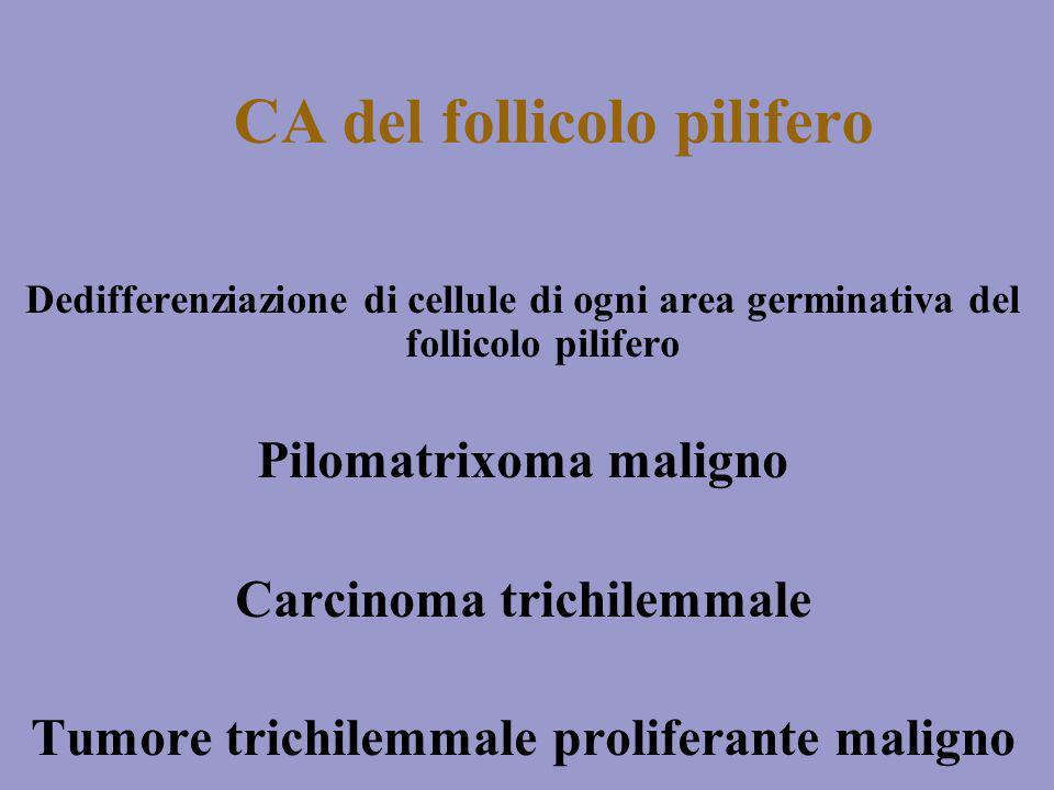 CA del follicolo pilifero