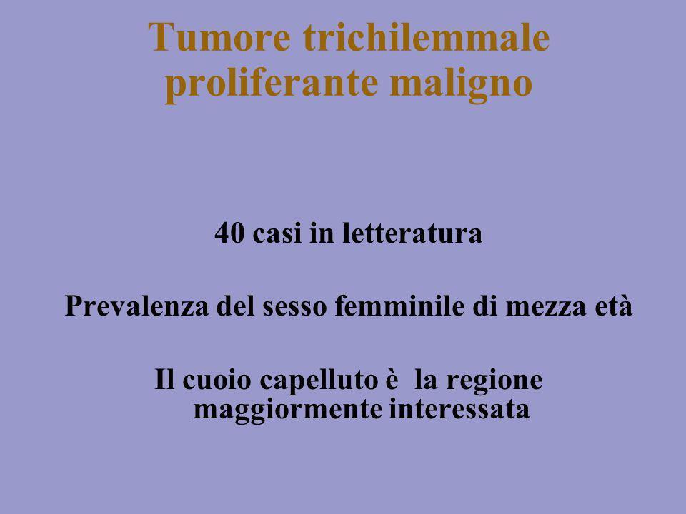 Tumore trichilemmale proliferante maligno