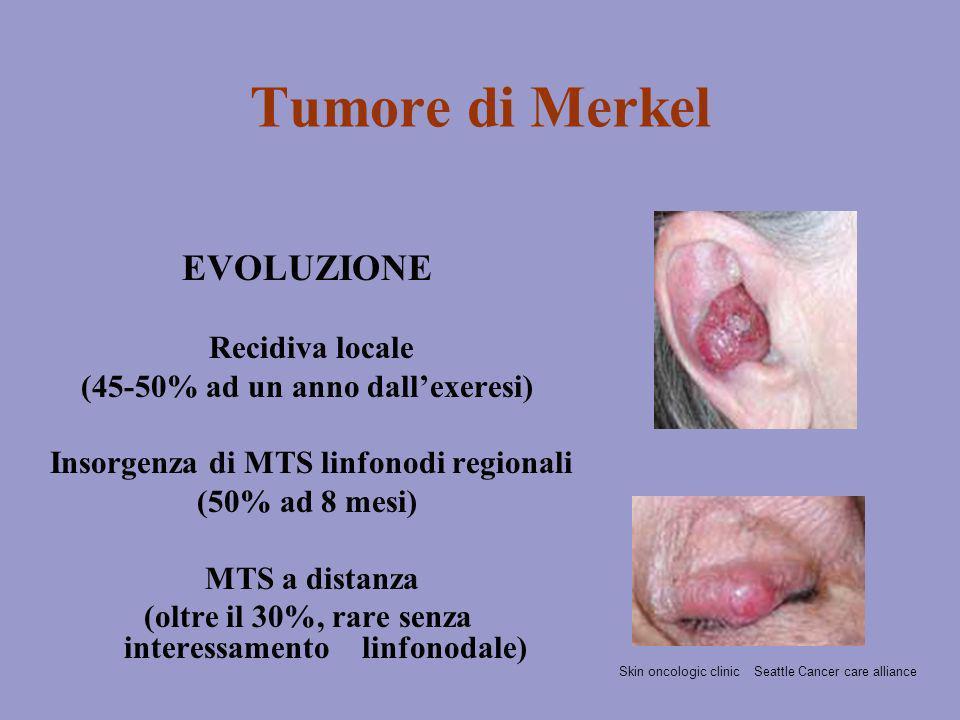 Tumore di Merkel EVOLUZIONE Recidiva locale