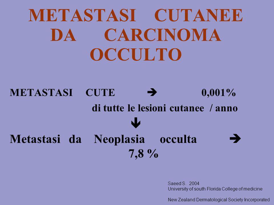 METASTASI CUTANEE DA CARCINOMA OCCULTO