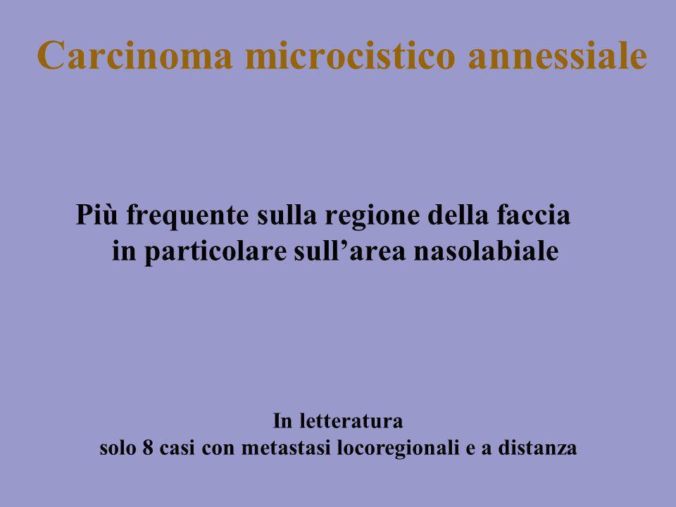Carcinoma microcistico annessiale