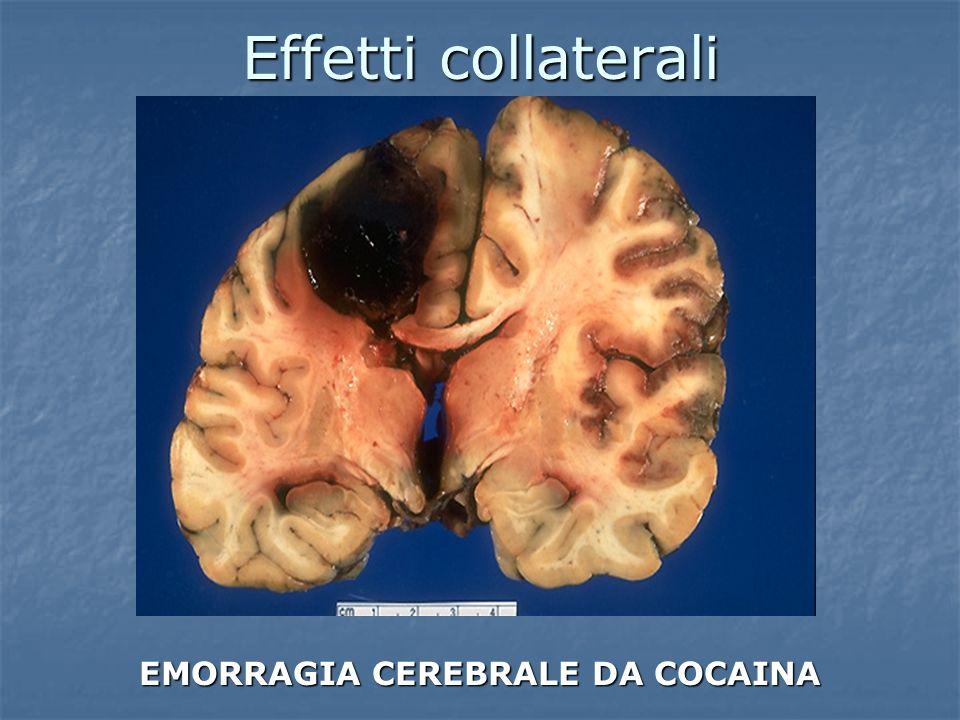 EMORRAGIA CEREBRALE DA COCAINA