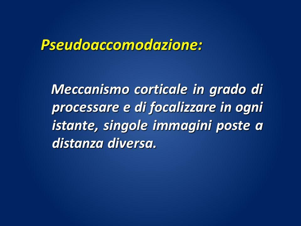 Pseudoaccomodazione: