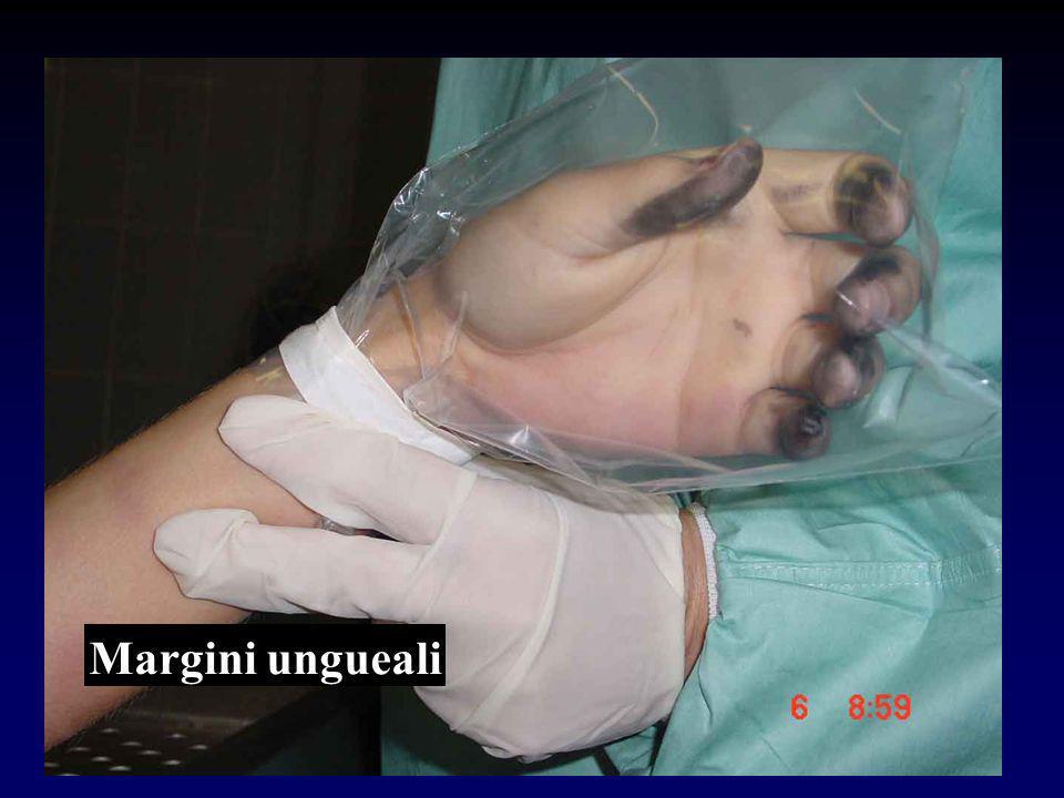 Margini ungueali