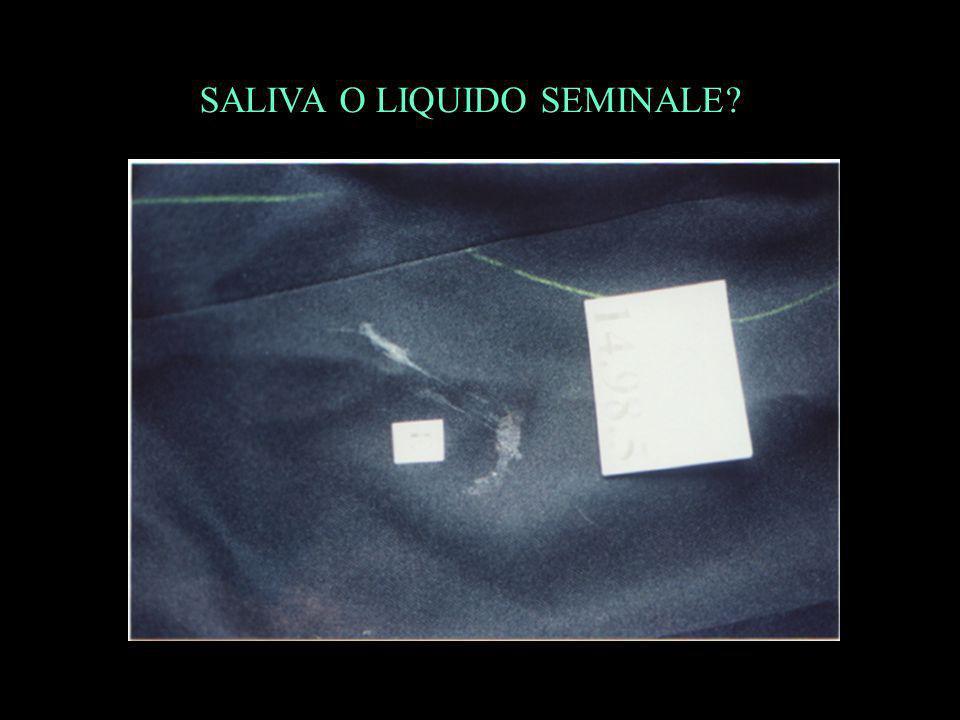 SALIVA O LIQUIDO SEMINALE