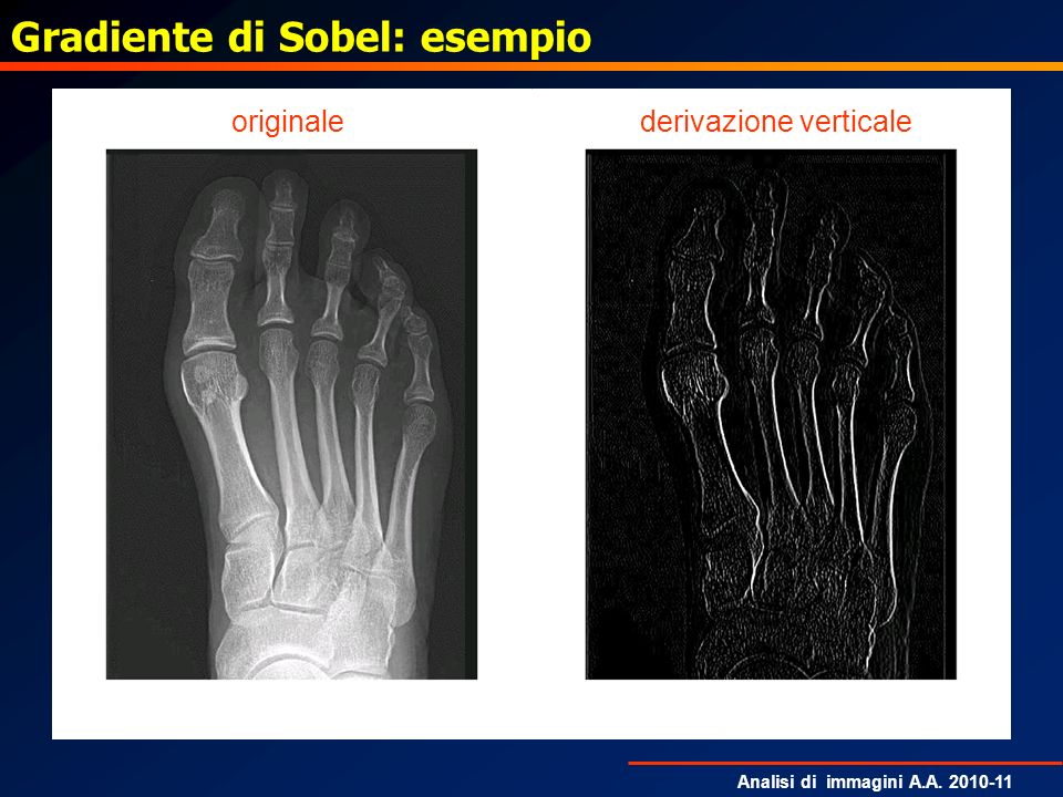Gradiente di Sobel: esempio