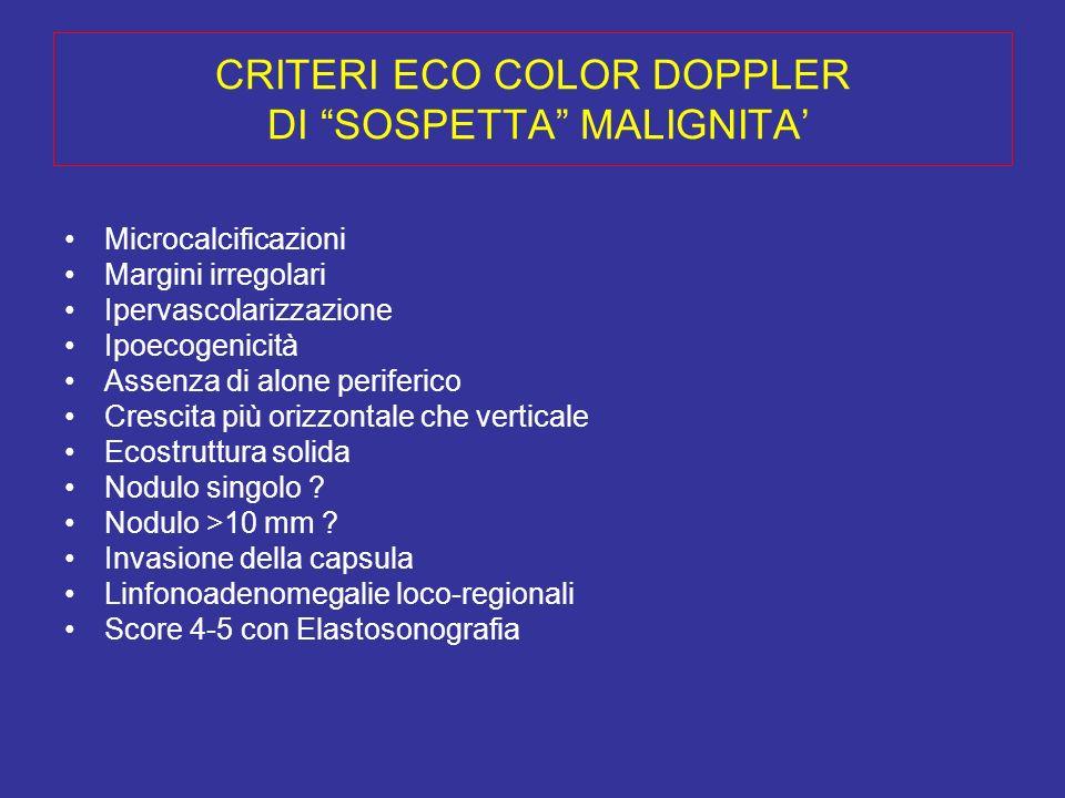 CRITERI ECO COLOR DOPPLER DI SOSPETTA MALIGNITA'