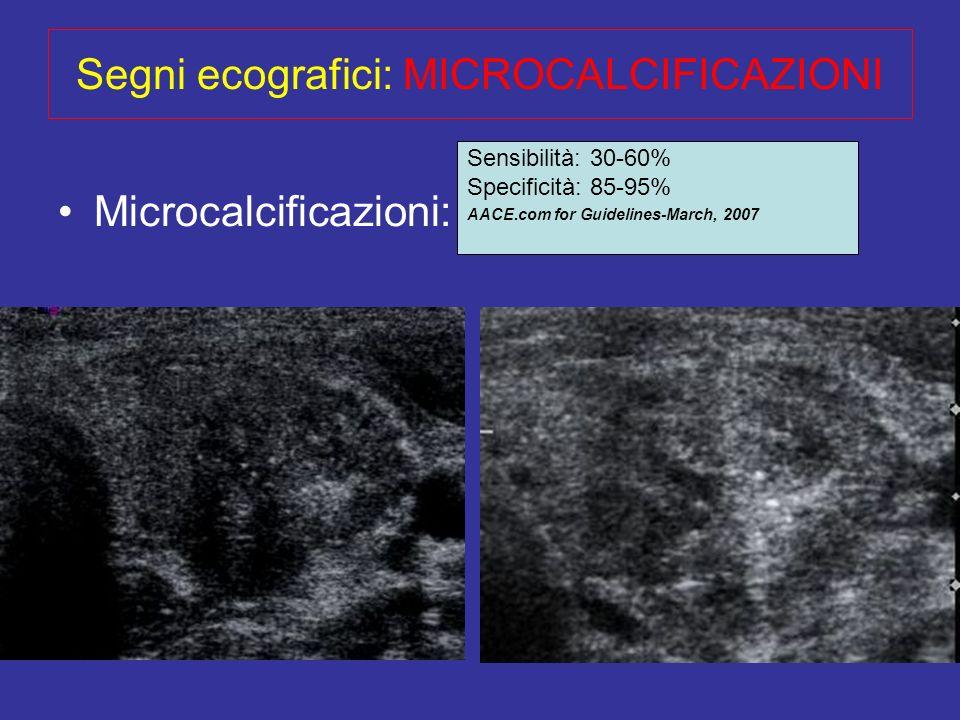 Segni ecografici: MICROCALCIFICAZIONI