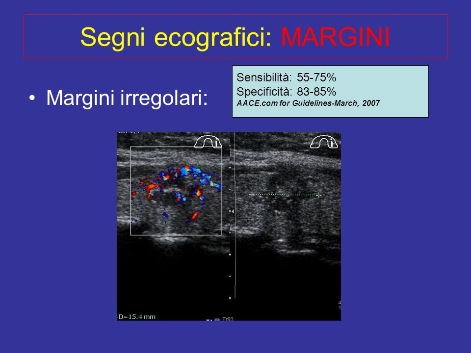 Segni ecografici: MARGINI