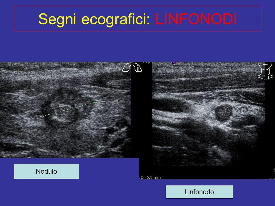 Segni ecografici: LINFONODI