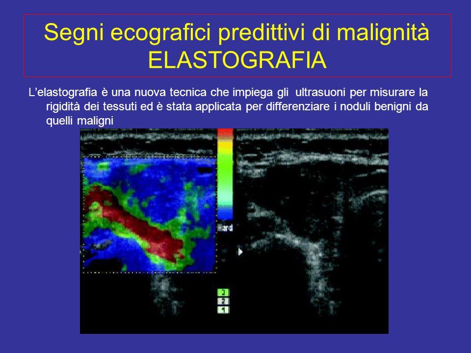 Segni ecografici predittivi di malignità ELASTOGRAFIA