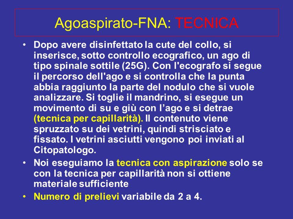 Agoaspirato-FNA: TECNICA