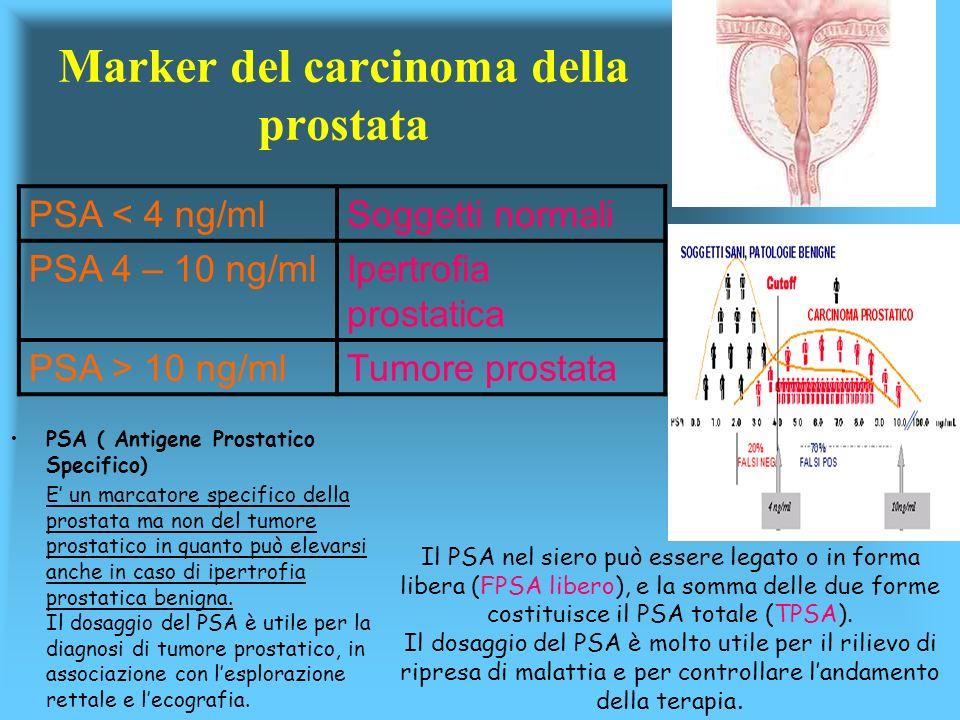 Marker del carcinoma della prostata
