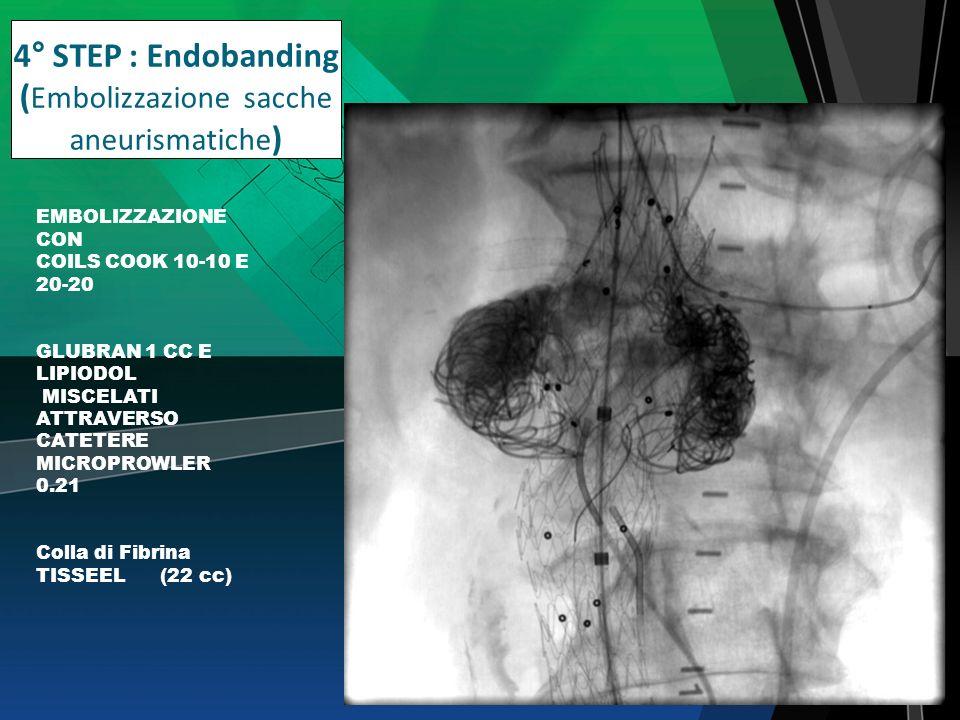 4° STEP : Endobanding (Embolizzazione sacche aneurismatiche)