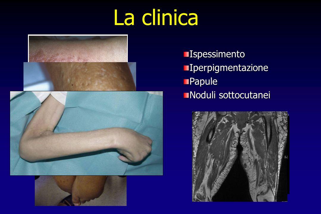 La clinica Ispessimento Iperpigmentazione Papule Noduli sottocutanei