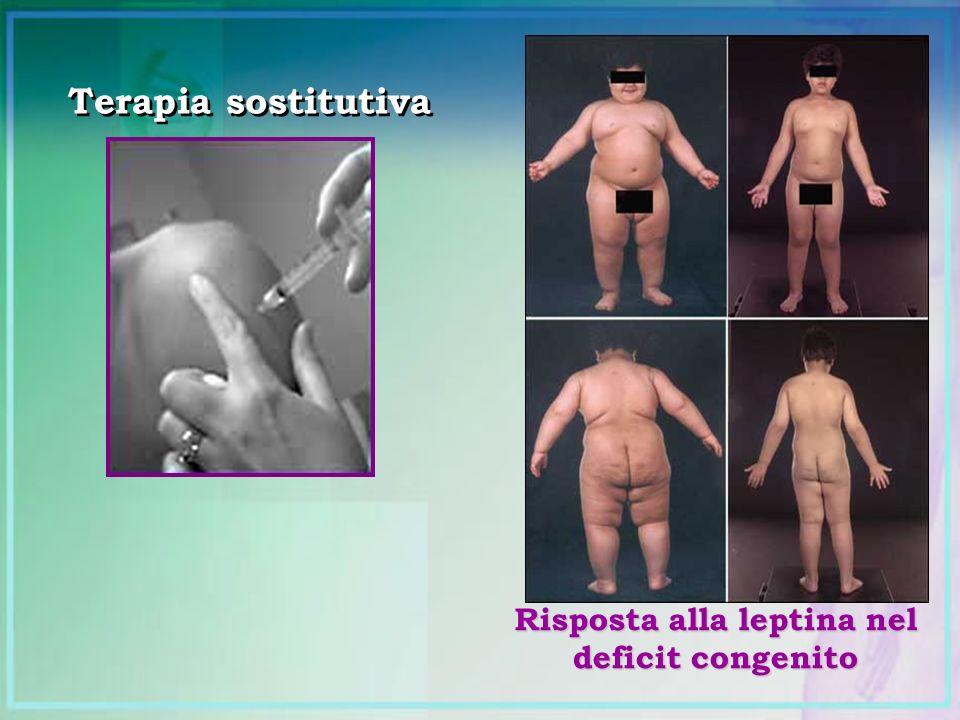 Risposta alla leptina nel deficit congenito