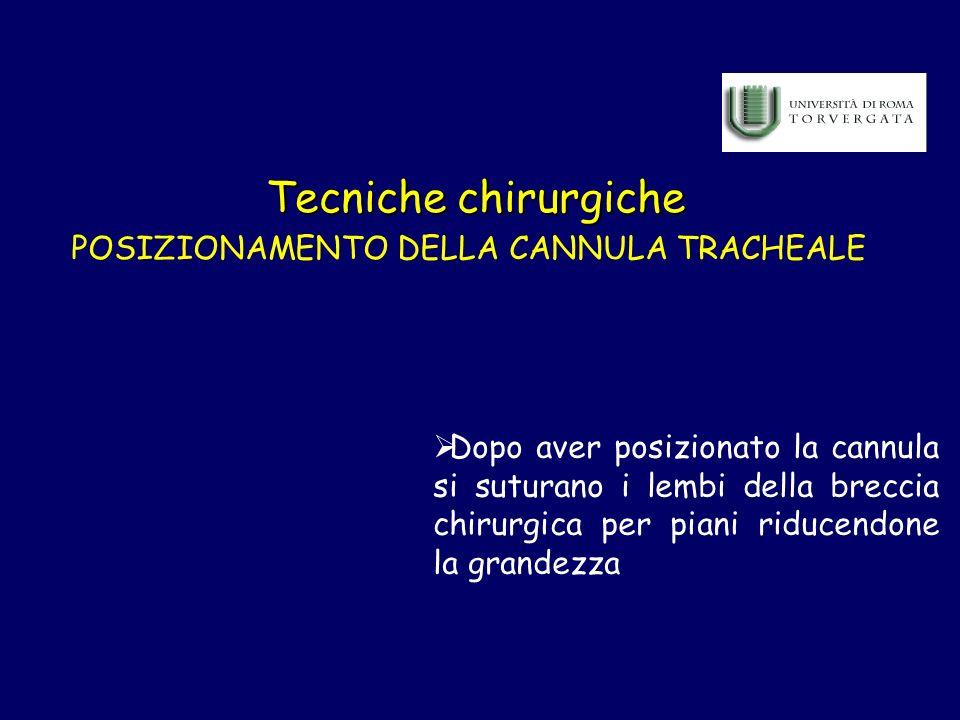 POSIZIONAMENTO DELLA CANNULA TRACHEALE