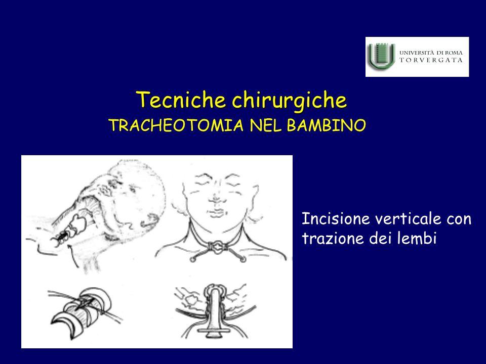 TRACHEOTOMIA NEL BAMBINO