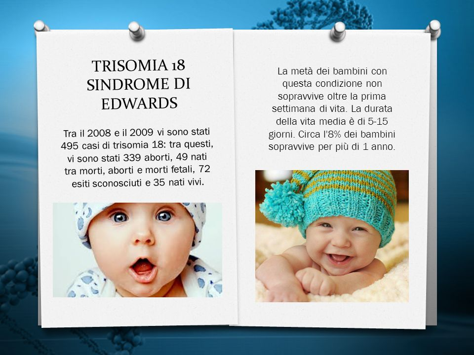 TRISOMIA 18 SINDROME DI EDWARDS