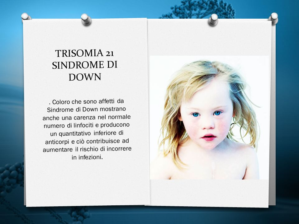 TRISOMIA 21 SINDROME DI DOWN