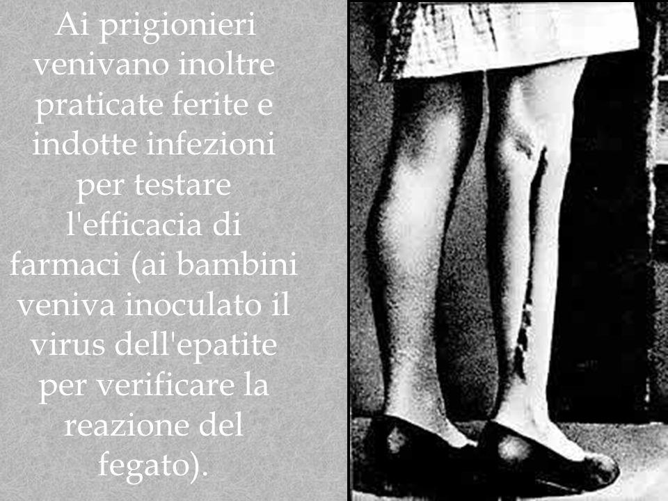 Ai prigionieri venivano inoltre praticate ferite e indotte infezioni per testare l efficacia di farmaci (ai bambini veniva inoculato il virus dell epatite per verificare la reazione del fegato).