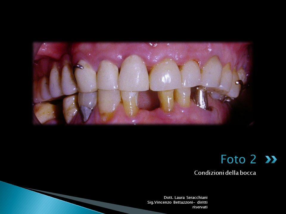 Foto 2 Condizioni della bocca
