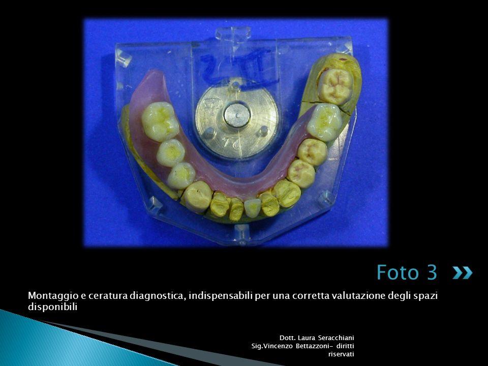 Foto 3 Montaggio e ceratura diagnostica, indispensabili per una corretta valutazione degli spazi disponibili.