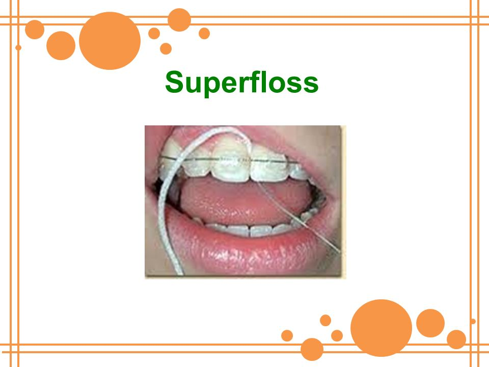 Superfloss