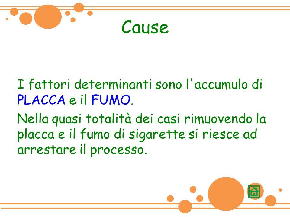 Cause I fattori determinanti sono l accumulo di PLACCA e il FUMO.