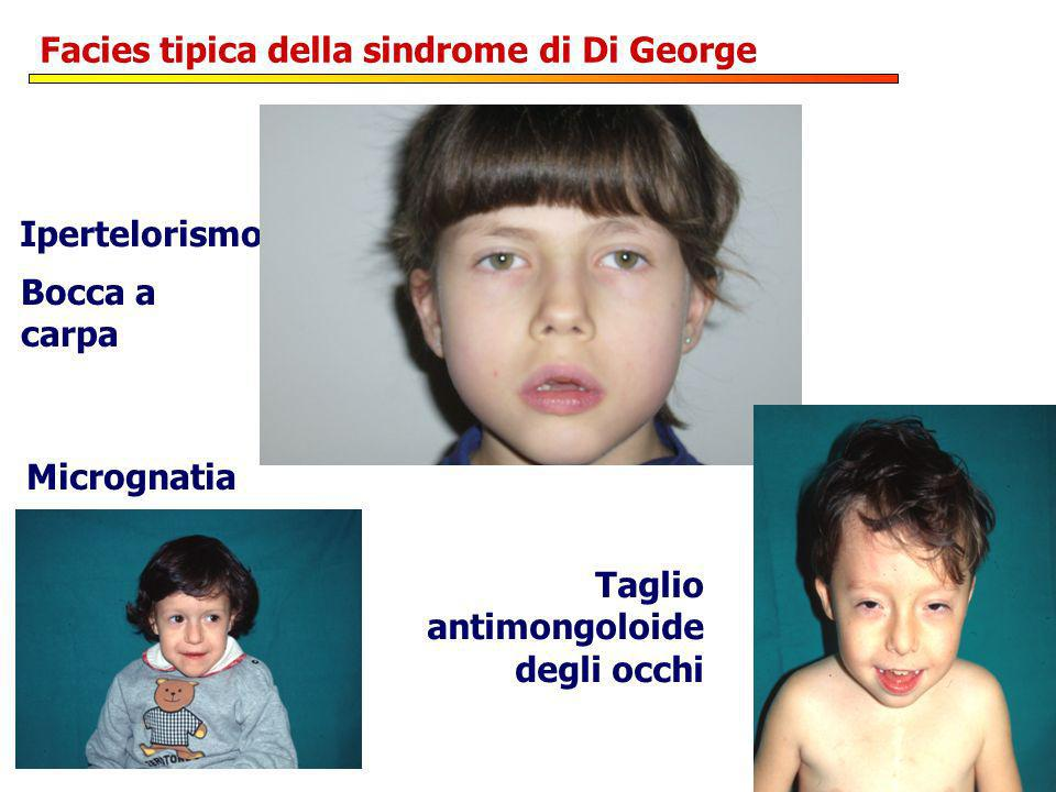 Facies tipica della sindrome di Di George