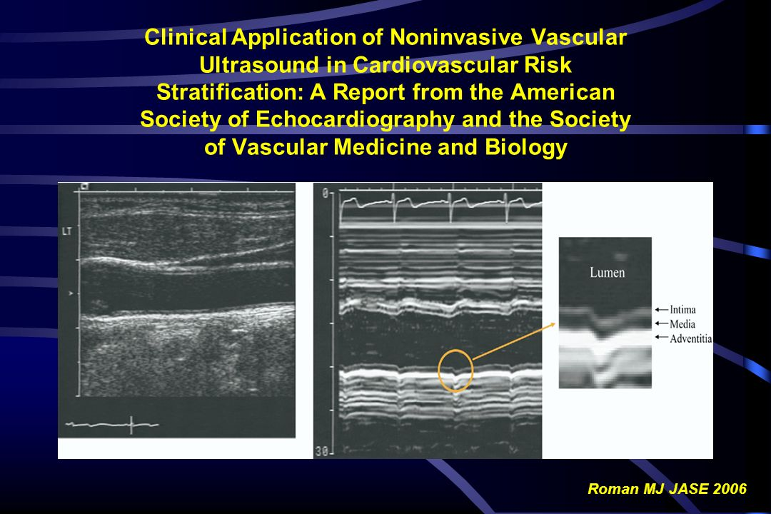 Clinical Application of Noninvasive Vascular Ultrasound in Cardiovascular Risk Stratification: A Report from the American Society of Echocardiography and the Society of Vascular Medicine and Biology
