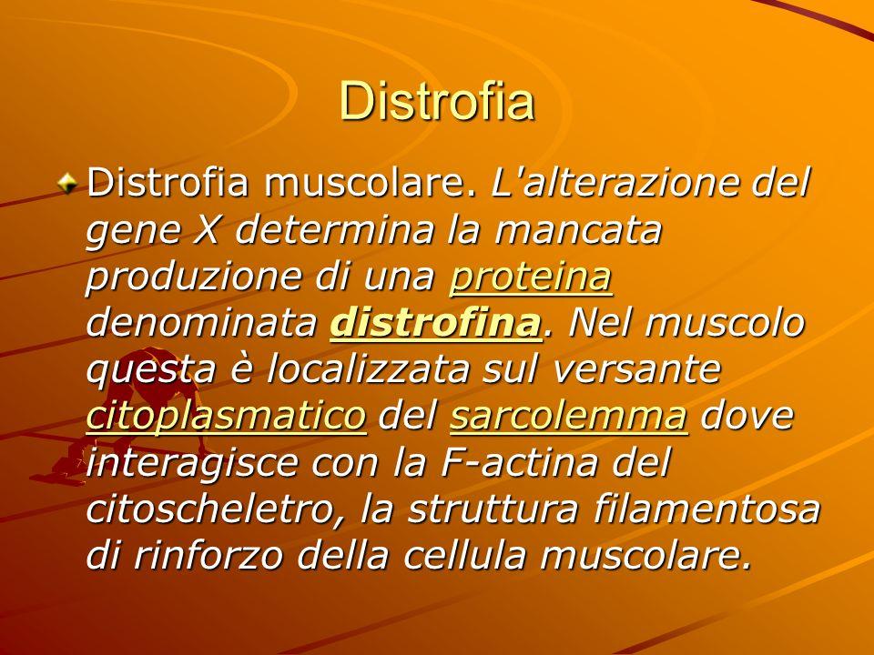 Distrofia