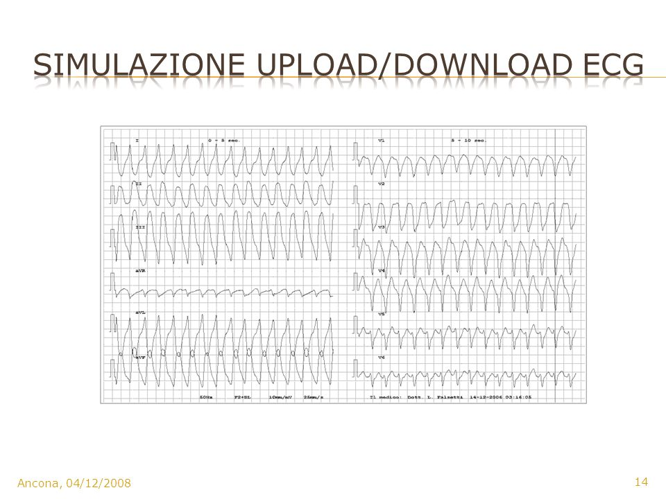 Simulazione Upload/download ecg