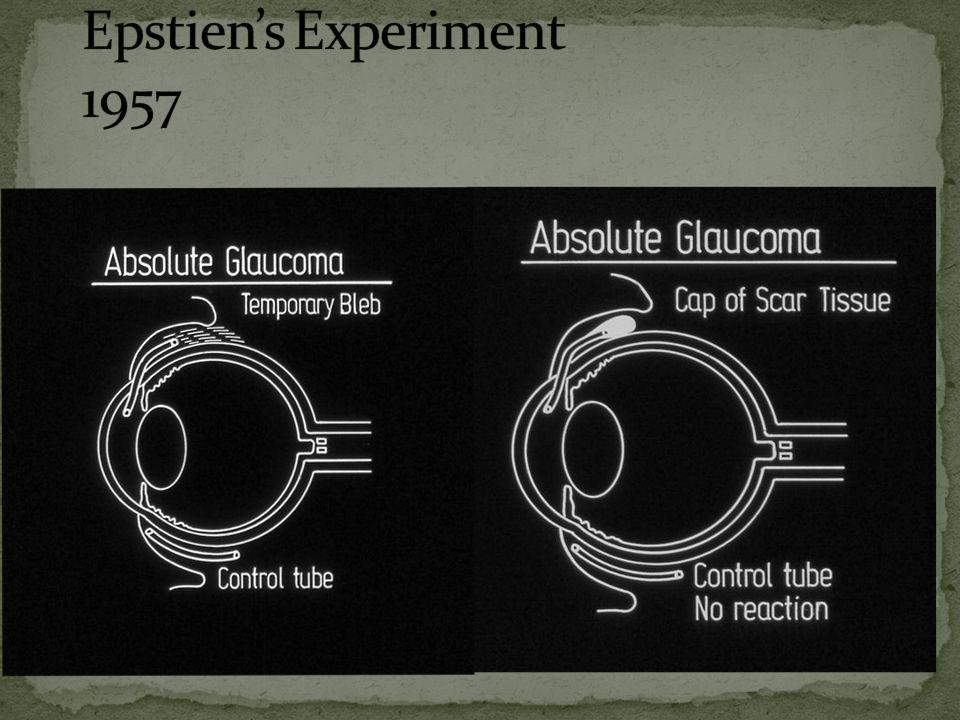 Epstien's Experiment 1957