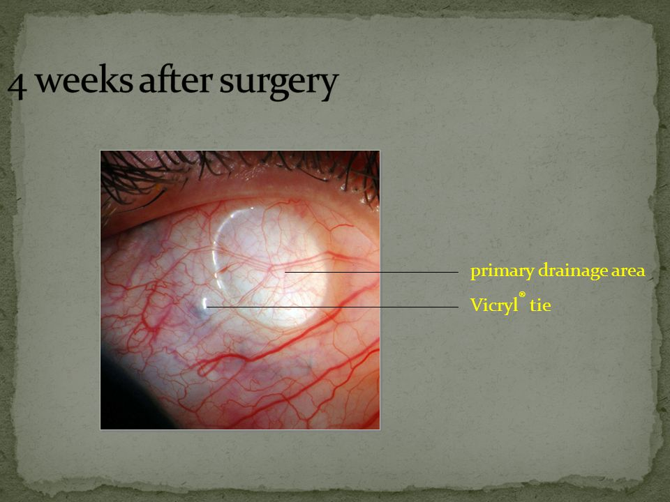 4 weeks after surgery primary drainage area Vicryl® tie