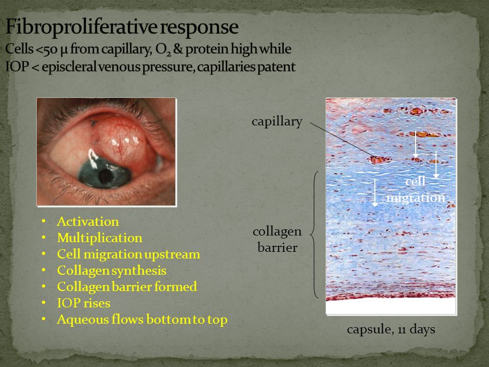 Fibroproliferative response Cells <50 µ from capillary, O2 & protein high while IOP < episcleral venous pressure, capillaries patent