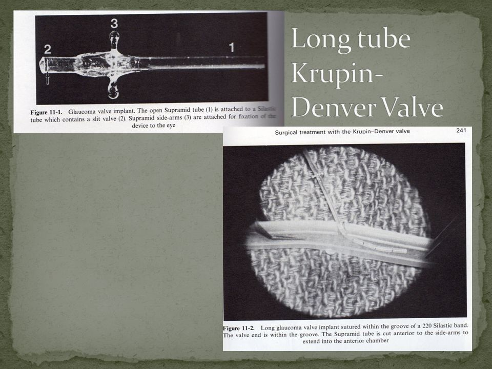 Long tube Krupin-Denver Valve